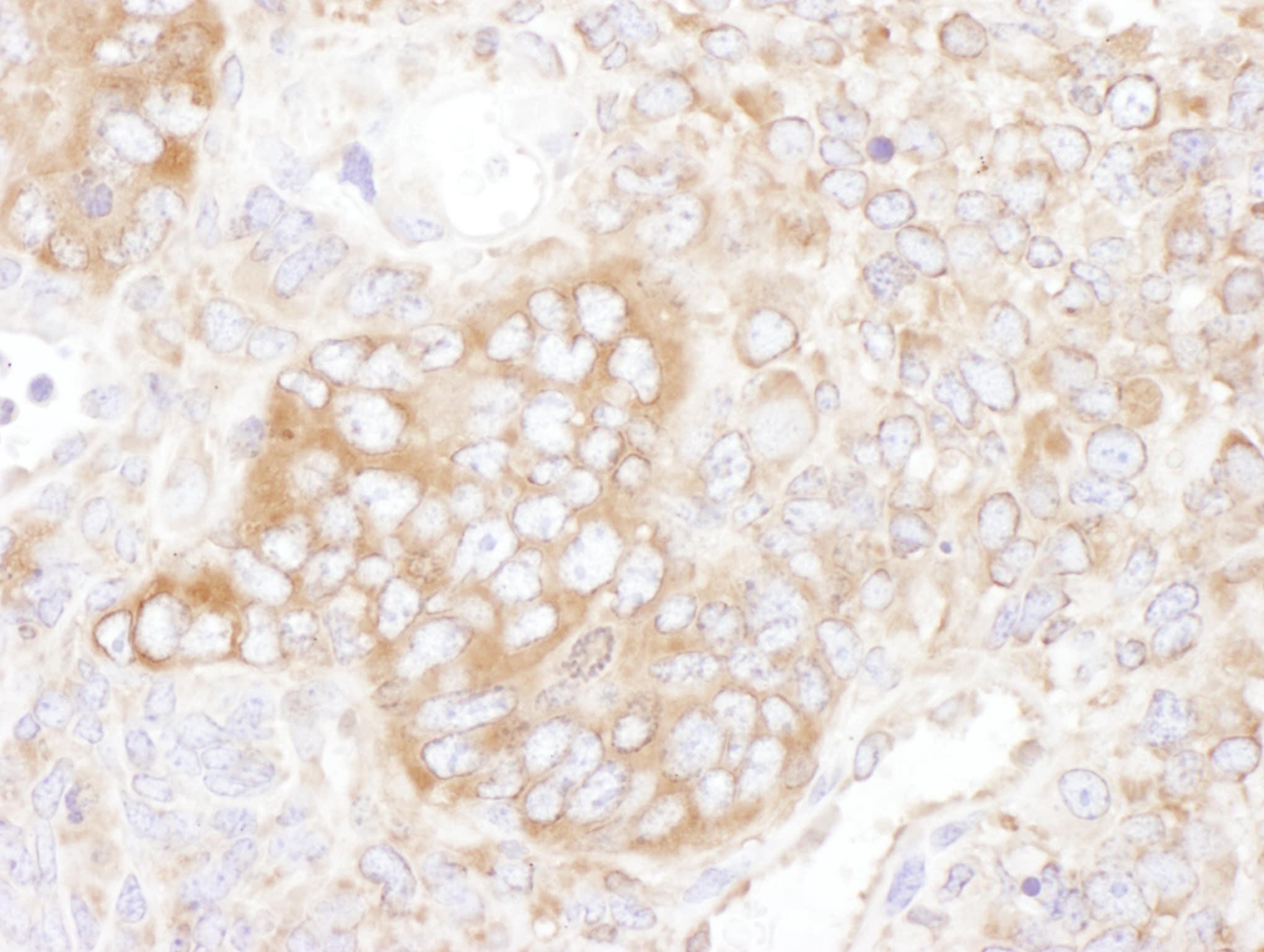 YB1 Antibody in Immunohistochemistry (IHC)