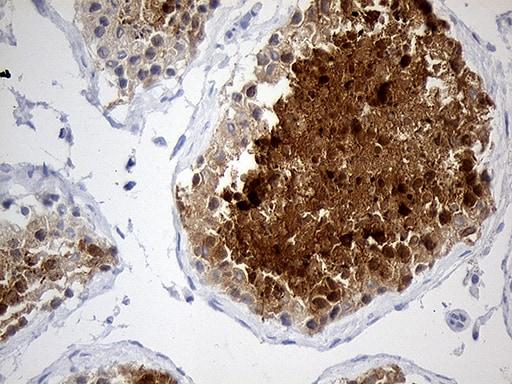 YBX2 Antibody in Immunohistochemistry (Paraffin) (IHC (P))