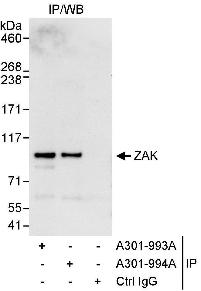 ZAK Antibody in Immunoprecipitation (IP)