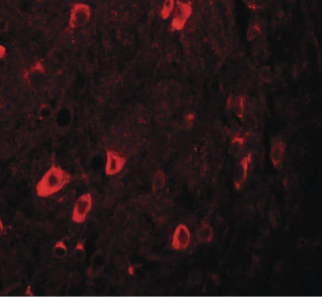 ZBTB3 Antibody in Immunohistochemistry (IHC)