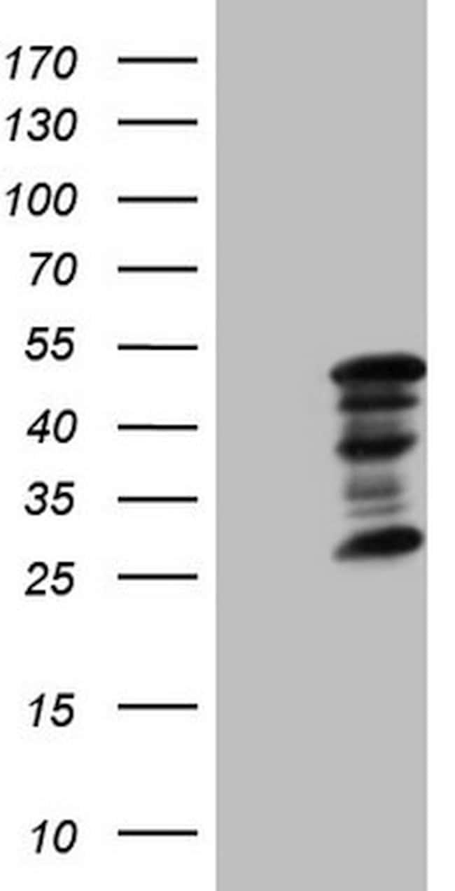ZC3H8 Antibody in Western Blot (WB)