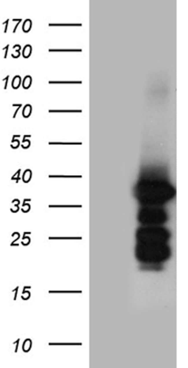 ZCCHC17 Antibody in Western Blot (WB)