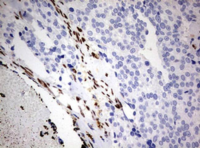 ZEB1 Antibody in Immunohistochemistry (Paraffin) (IHC (P))