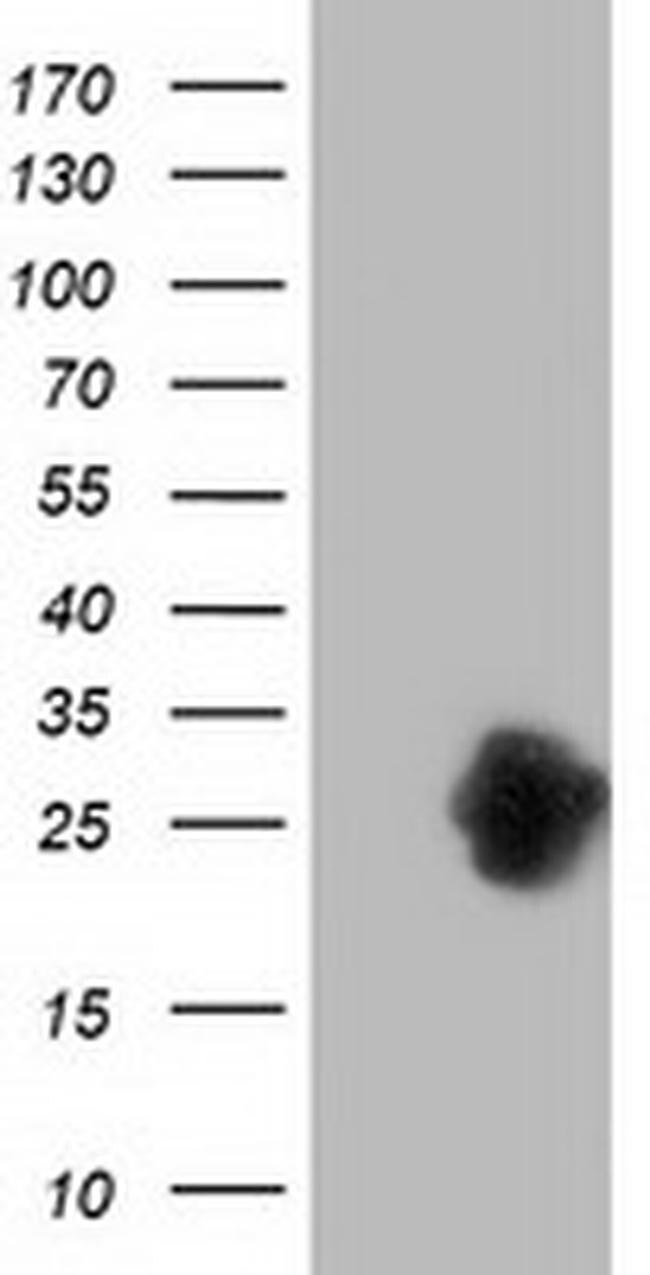 ZFAND2B Antibody in Western Blot (WB)