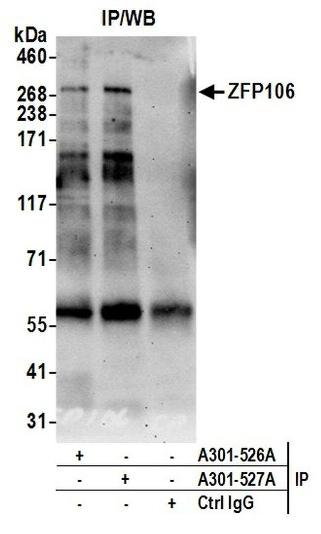 ZFP106 Antibody in Immunoprecipitation (IP)