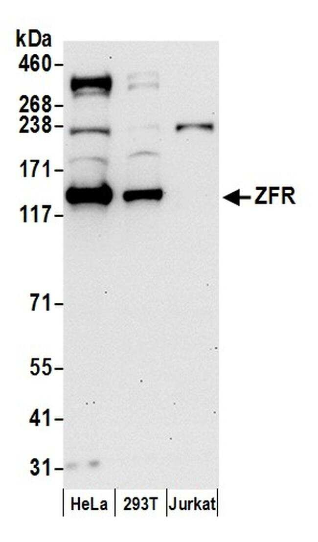 ZFR Antibody in Western Blot (WB)