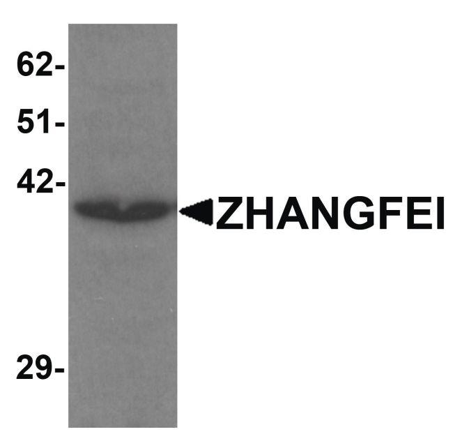 CREBZF Antibody in Western Blot (WB)