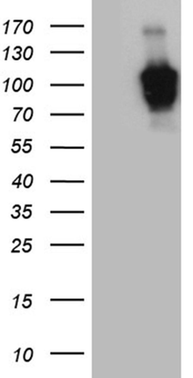 ZHX2 Antibody in Western Blot (WB)