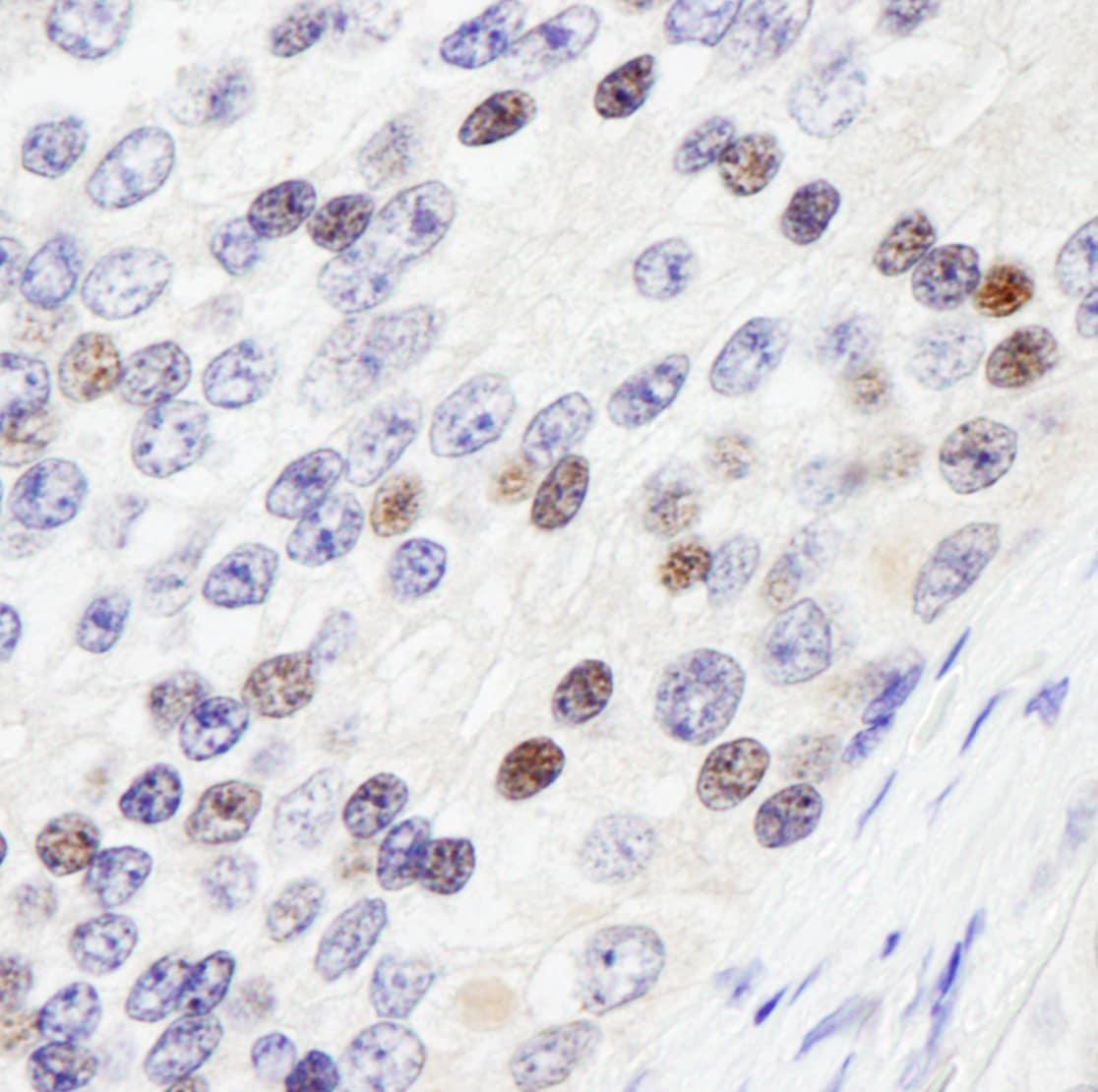 ZHX3 Antibody in Immunohistochemistry (IHC)