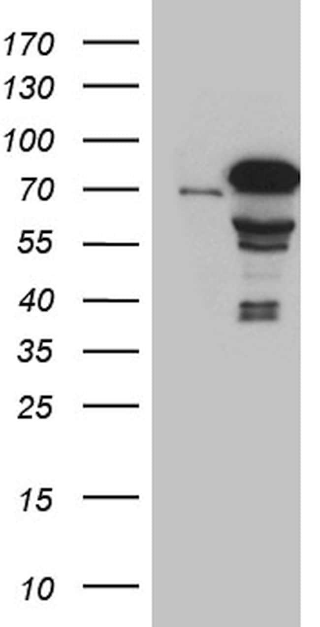 ZKSCAN1 Antibody in Western Blot (WB)