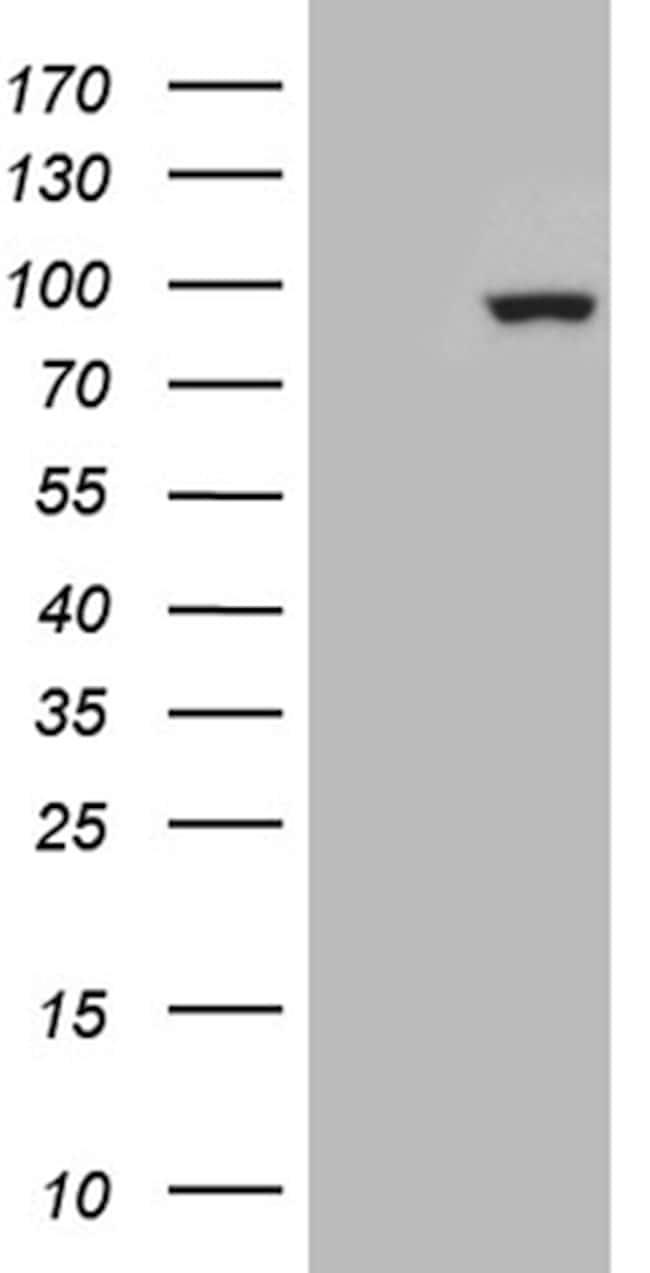 ZNF175 Antibody in Western Blot (WB)
