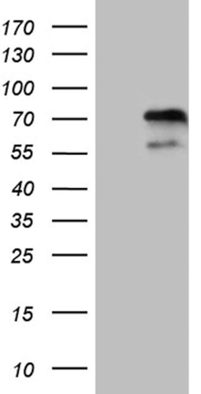 ZNF18 Antibody in Western Blot (WB)
