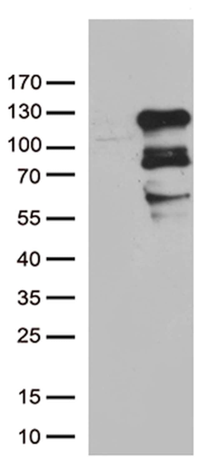 ZNF202 Antibody in Western Blot (WB)