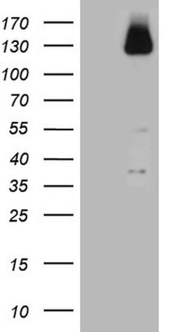 ZNF217 Antibody in Western Blot (WB)