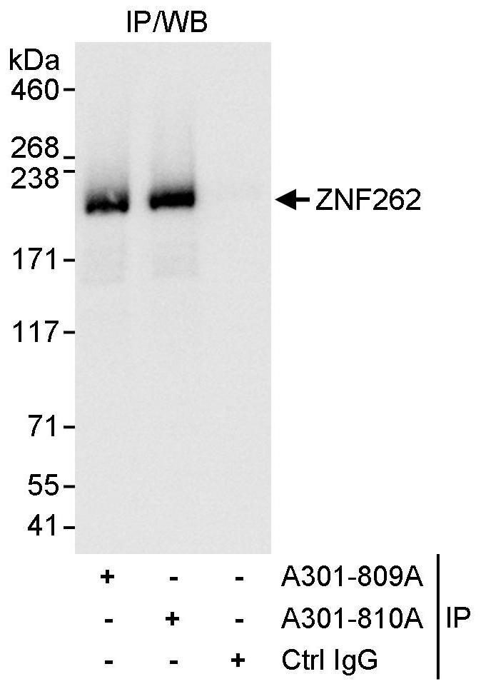 ZNF262 Antibody in Immunoprecipitation (IP)