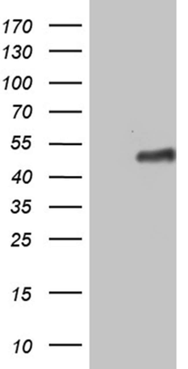 ZNF330 Antibody in Western Blot (WB)