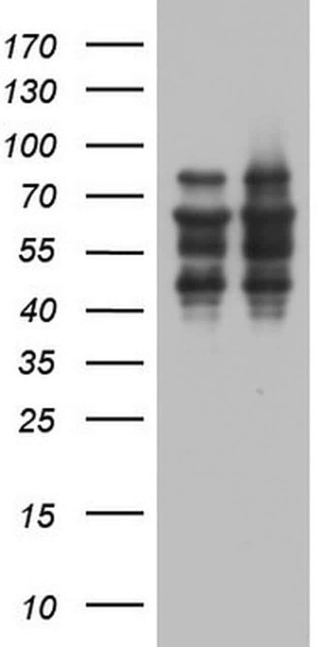 ZNF34 Antibody in Western Blot (WB)