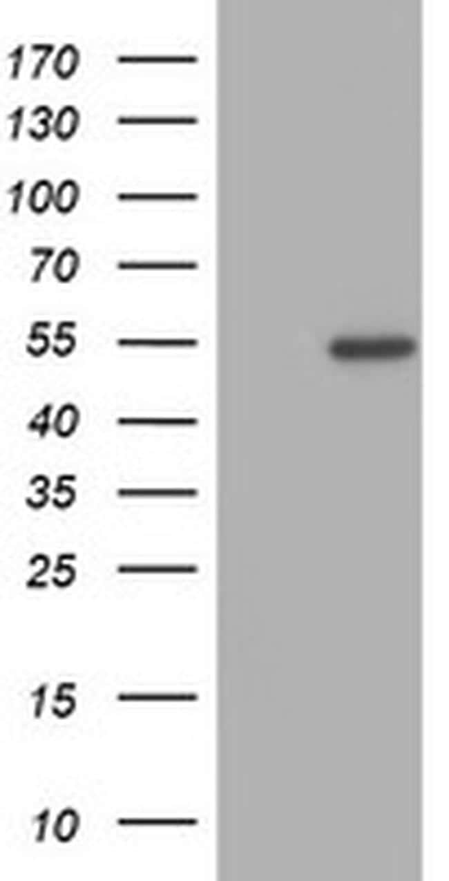 ZNF365 Antibody in Western Blot (WB)