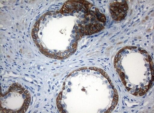 ZNF394 Antibody in Immunohistochemistry (Paraffin) (IHC (P))