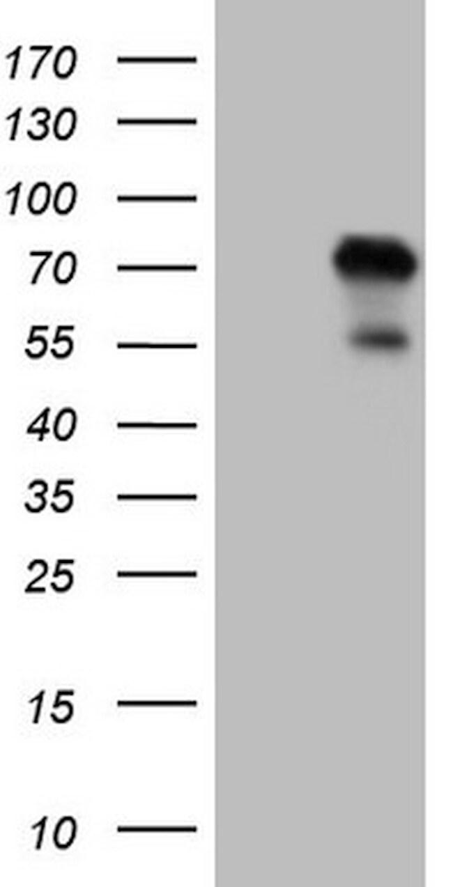 ZNF394 Antibody in Western Blot (WB)