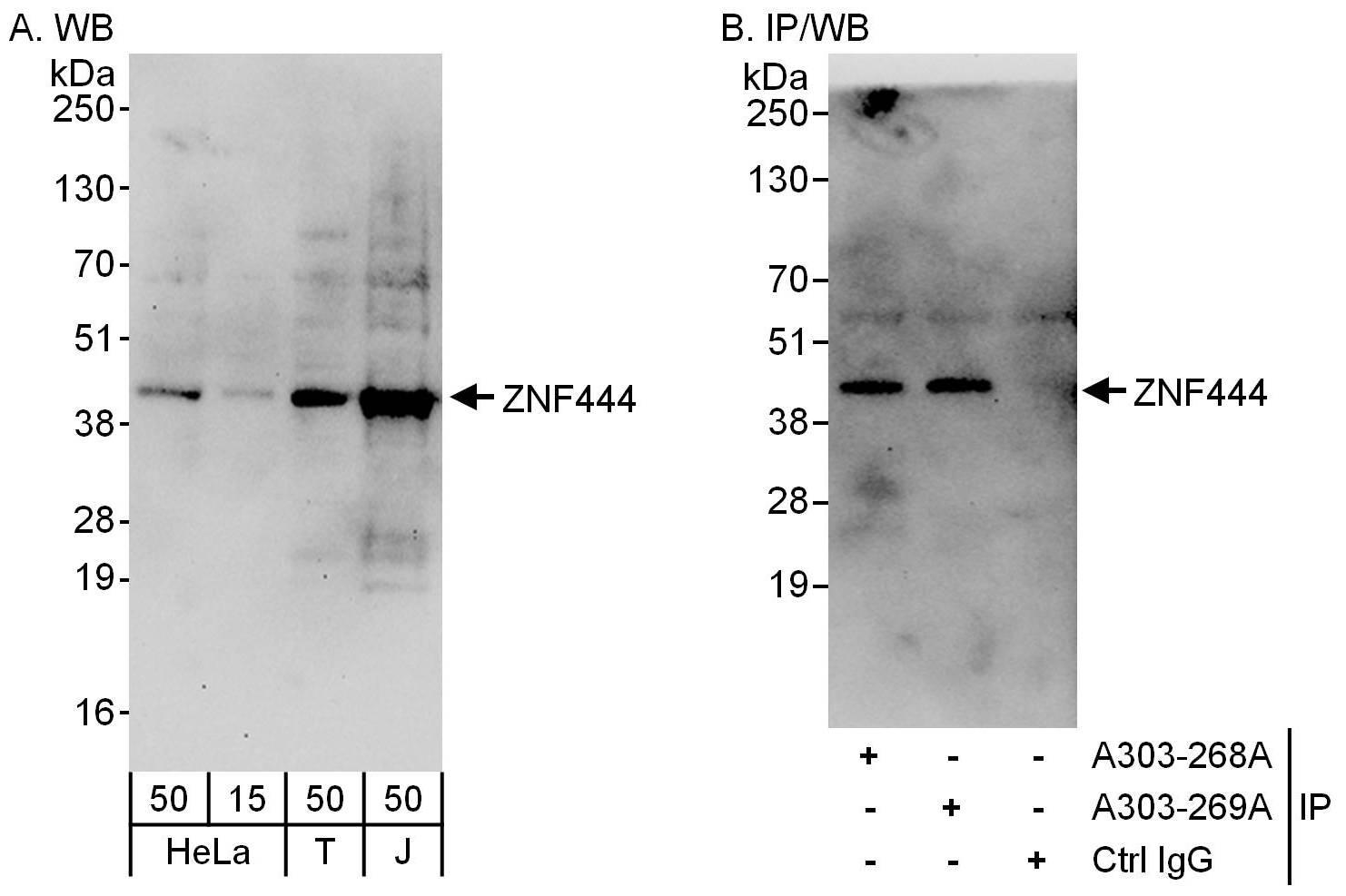 ZNF444 Antibody in Western Blot (WB)