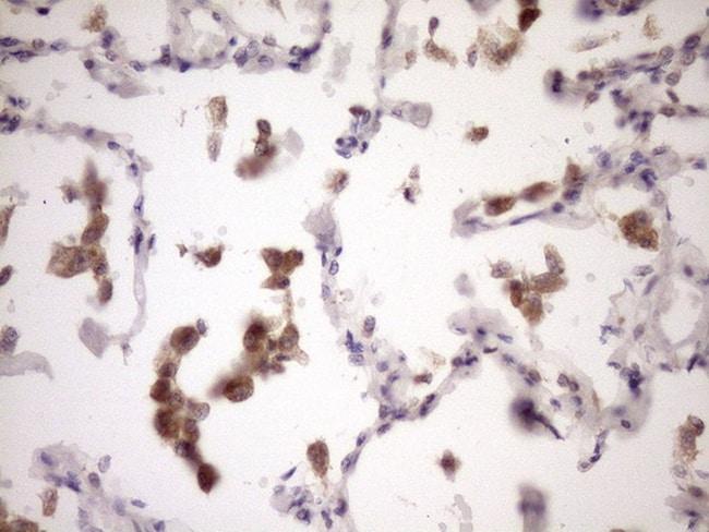 ZNF449 Antibody in Immunohistochemistry (Paraffin) (IHC (P))