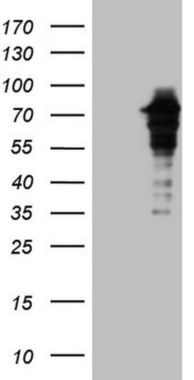 ZNF449 Antibody in Western Blot (WB)