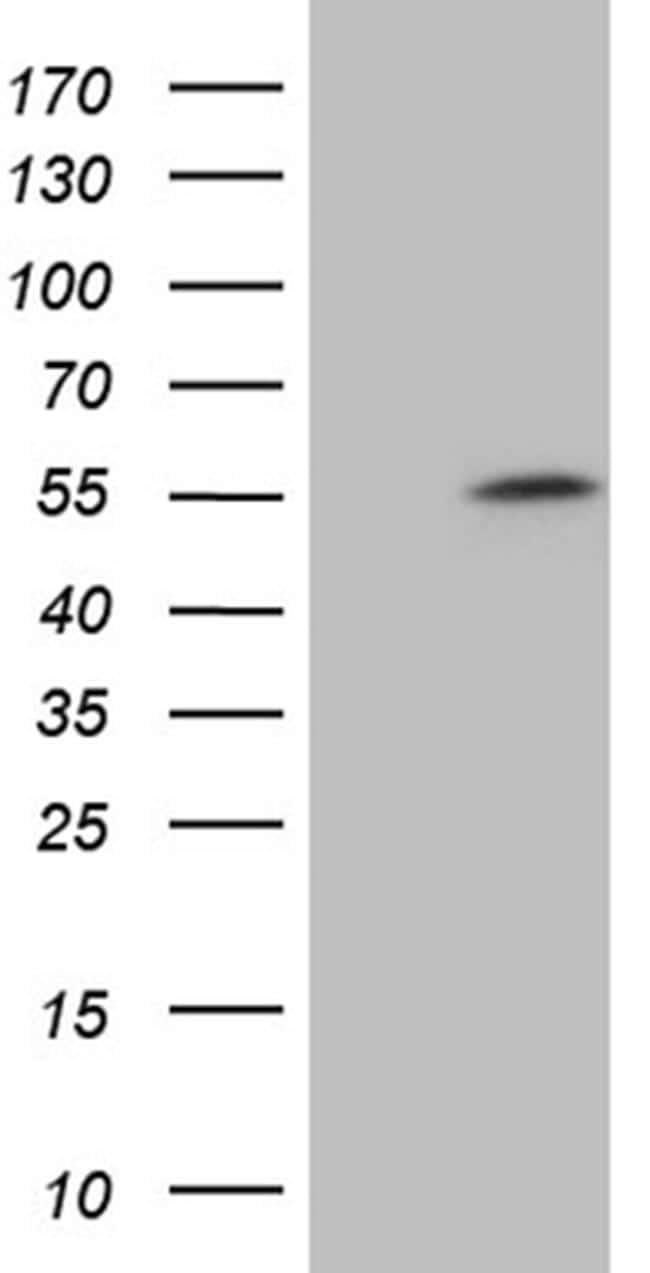 ZNF454 Antibody in Western Blot (WB)