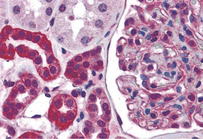 ZNF521 Antibody in Immunohistochemistry (IHC)