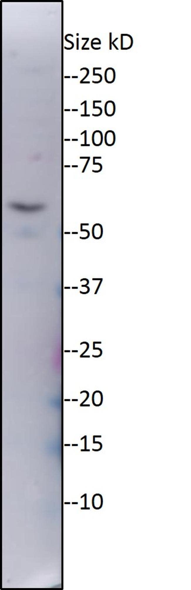 ZNF578 Antibody in Western Blot (WB)