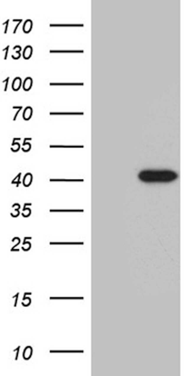 ZNF670 Antibody in Western Blot (WB)