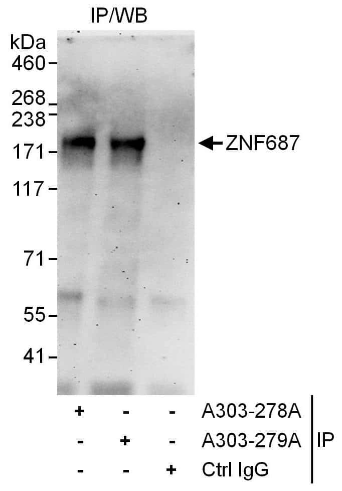 ZNF687 Antibody in Immunoprecipitation (IP)