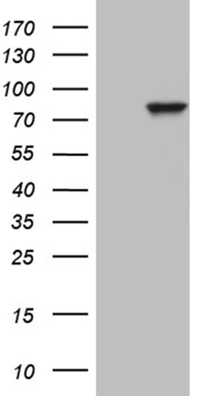 ZRANB1 Antibody in Western Blot (WB)