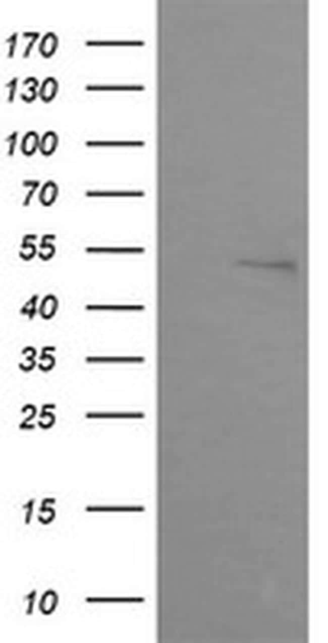 ZSCAN21 Antibody in Western Blot (WB)