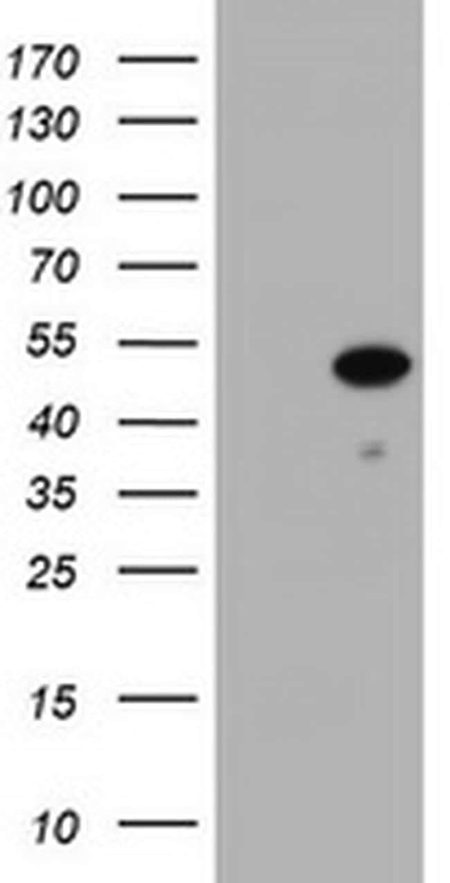 ZSCAN4 Antibody in Western Blot (WB)