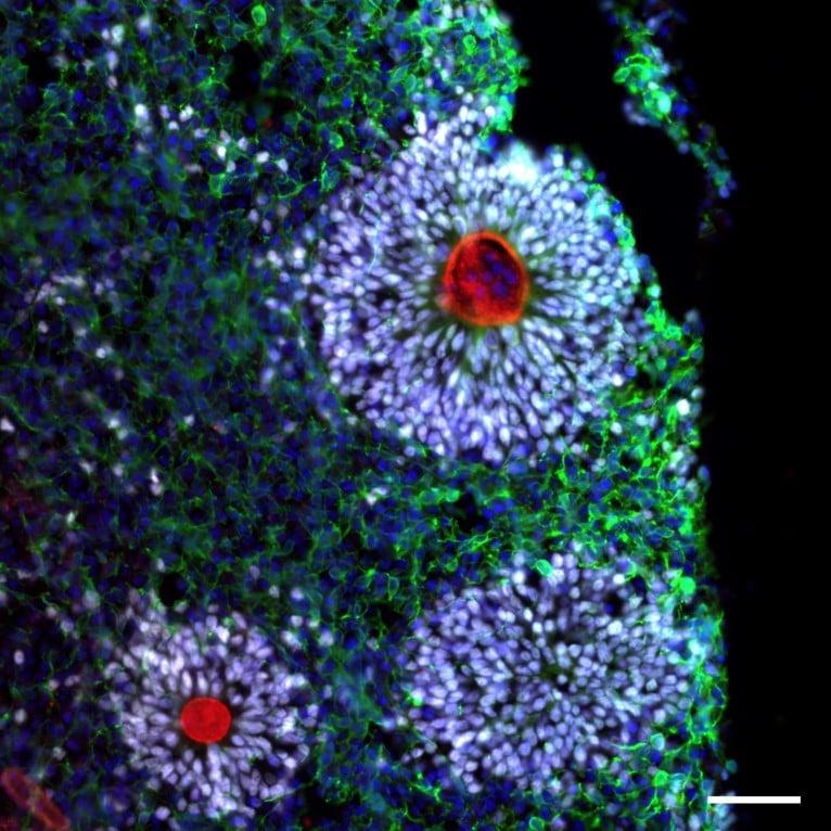 ZO-1 Antibody in Immunohistochemistry (Frozen) (IHC (F))