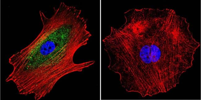 alpha Adaptin Antibody in Immunofluorescence (IF)