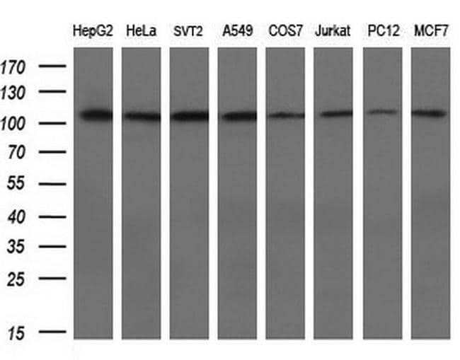 alpha-actinin (Actinin alpha 1) Antibody in Western Blot (WB)