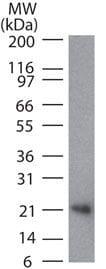 CD254 (RANK Ligand) Antibody in Western Blot (WB)