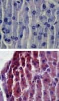 TLR2 Antibody in Immunohistochemistry (Paraffin) (IHC (P))