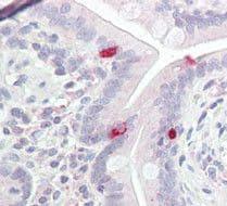 POU3F2 Antibody in Immunohistochemistry (Paraffin) (IHC (P))