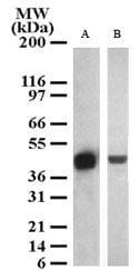 SETD7 Antibody in Western Blot (WB)