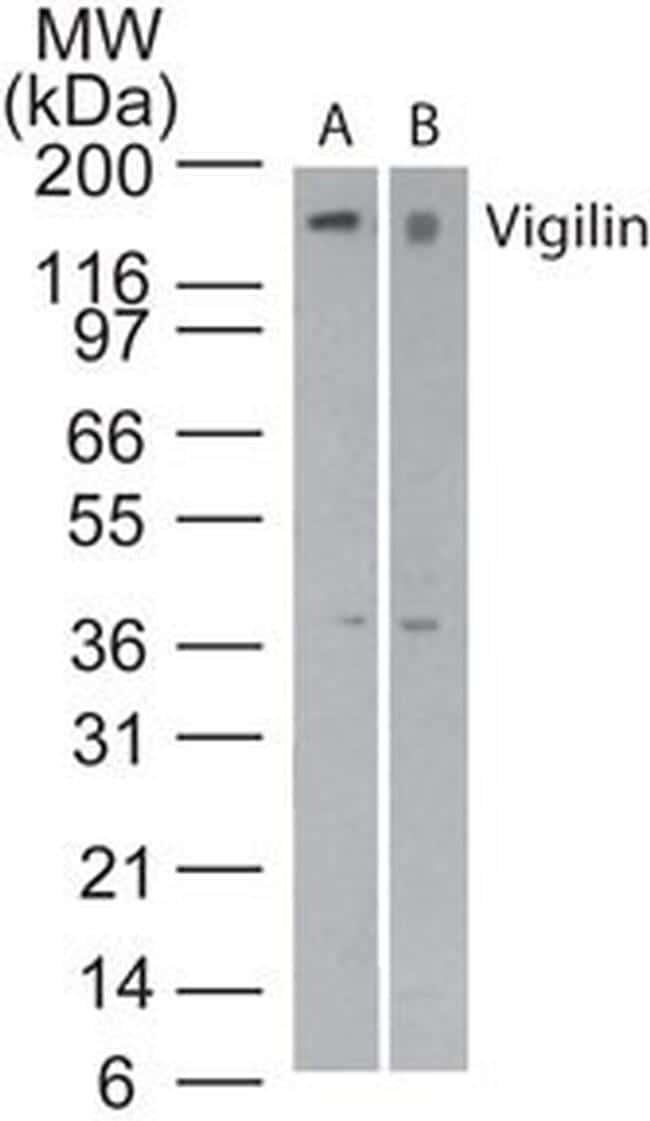 HDLBP Antibody in Western Blot (WB)