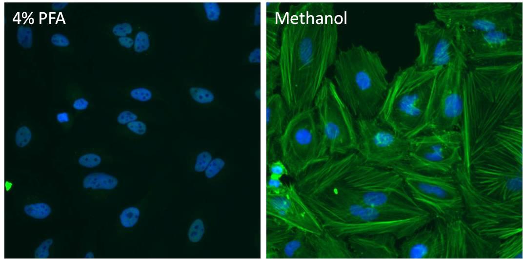 beta Actin Loading Control Antibody in Immunofluorescence (IF)