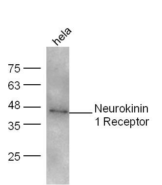 Neurokinin 1 Receptor Antibody in Western Blot (WB)