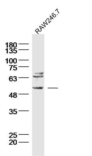 Neurokinin B receptor Antibody in Western Blot (WB)