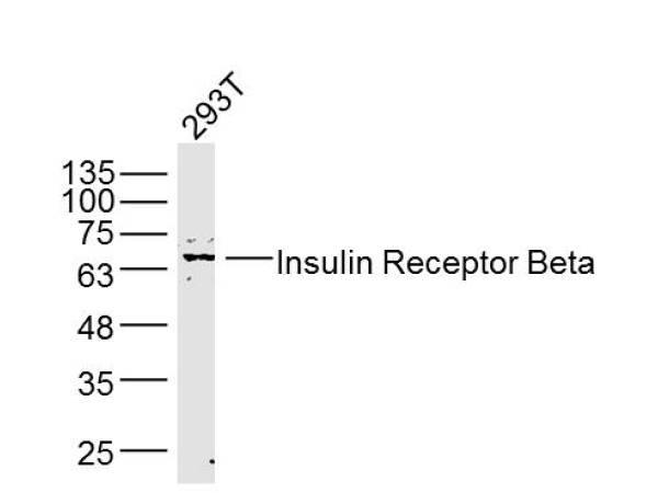 Insulin Receptor Beta Antibody in Western Blot (WB)