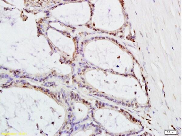 MTLC Antibody in Immunohistochemistry (Paraffin) (IHC (P))