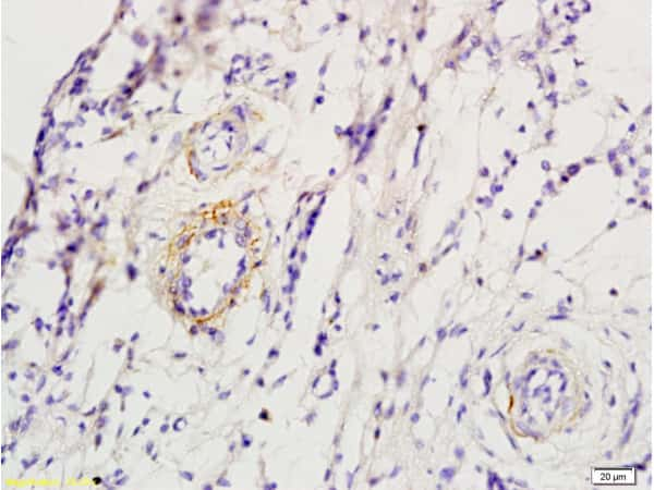 ADRB1 Antibody in Immunohistochemistry (Paraffin) (IHC (P))