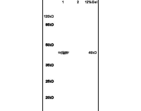 ADRB2 Antibody in Western Blot (WB)